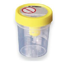 Corman Medipresteril Contenitore Urina 120 ml con Sistema Transfer Sottovuoto